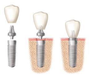 novi_zubi_na_implantatima dr kojic