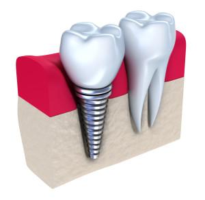 zubni implant 2 dr kojic