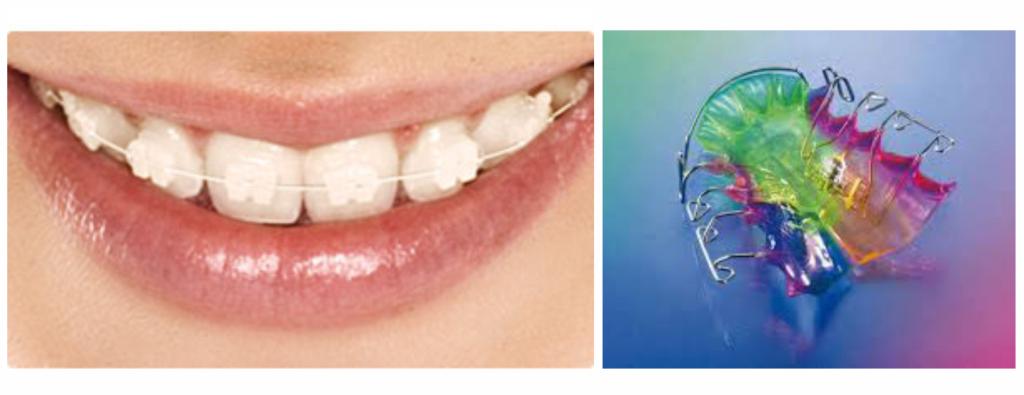 Ortodoncija3